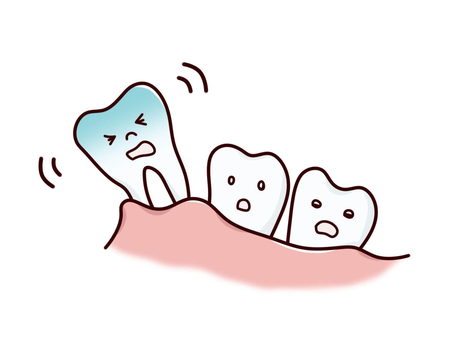 抜歯をしました